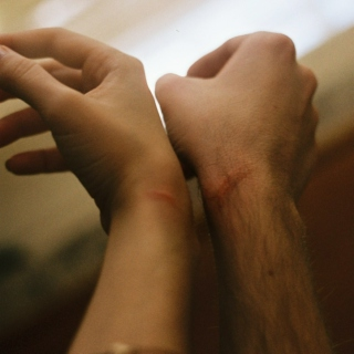 Our scars.
