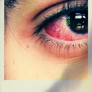 pain in the eyes