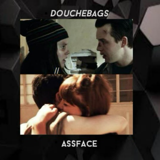 Douchebags // Assface