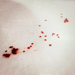 paint the ice with blood.