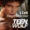 Teen Wolf s1e6 Unofficial Soundtrack