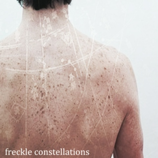 freckle constellations
