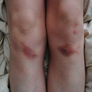 Bruises and bites.