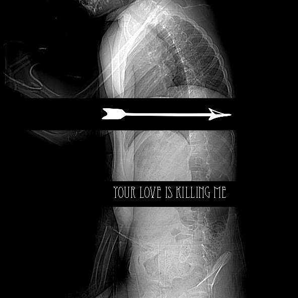 YOUR LOVE IS KILLING ME (literally)