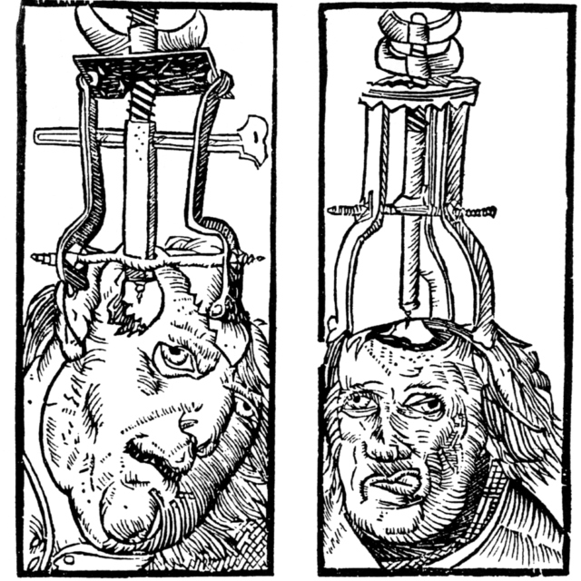 Trepanning for Gold
