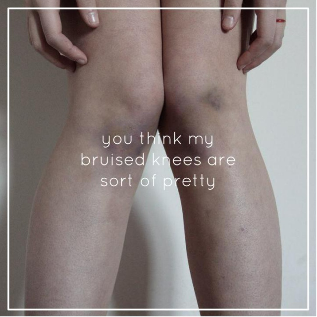 you think my bruised knees are sort of pretty